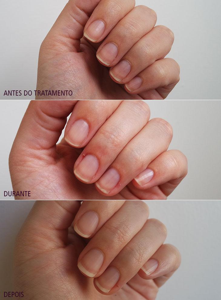 nail hardener herôme