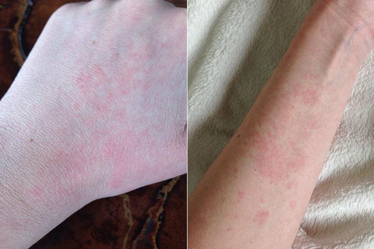 Teste de contato para alergia