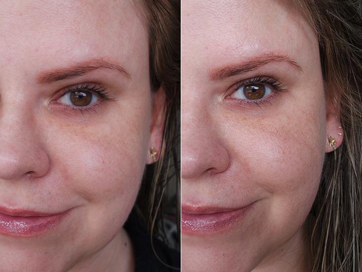 Sérum 10 SkinCeuticals