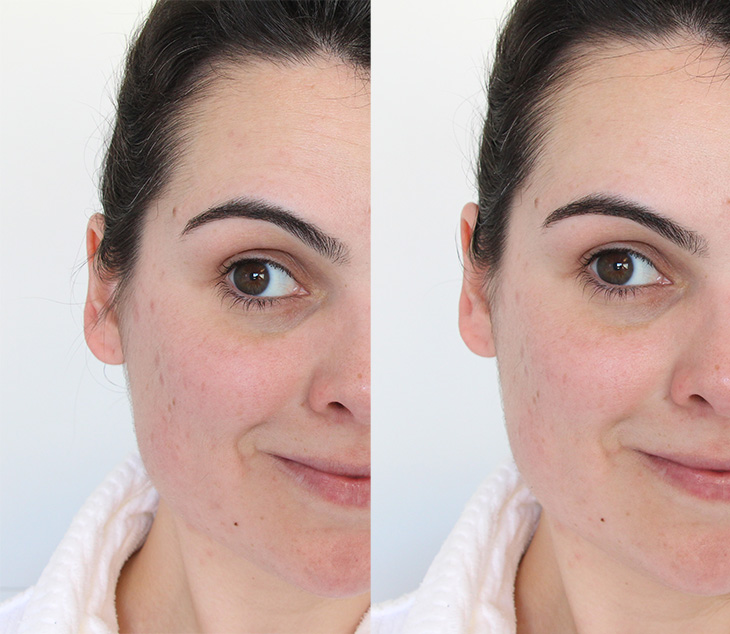 Óleo Facial de vitamina c